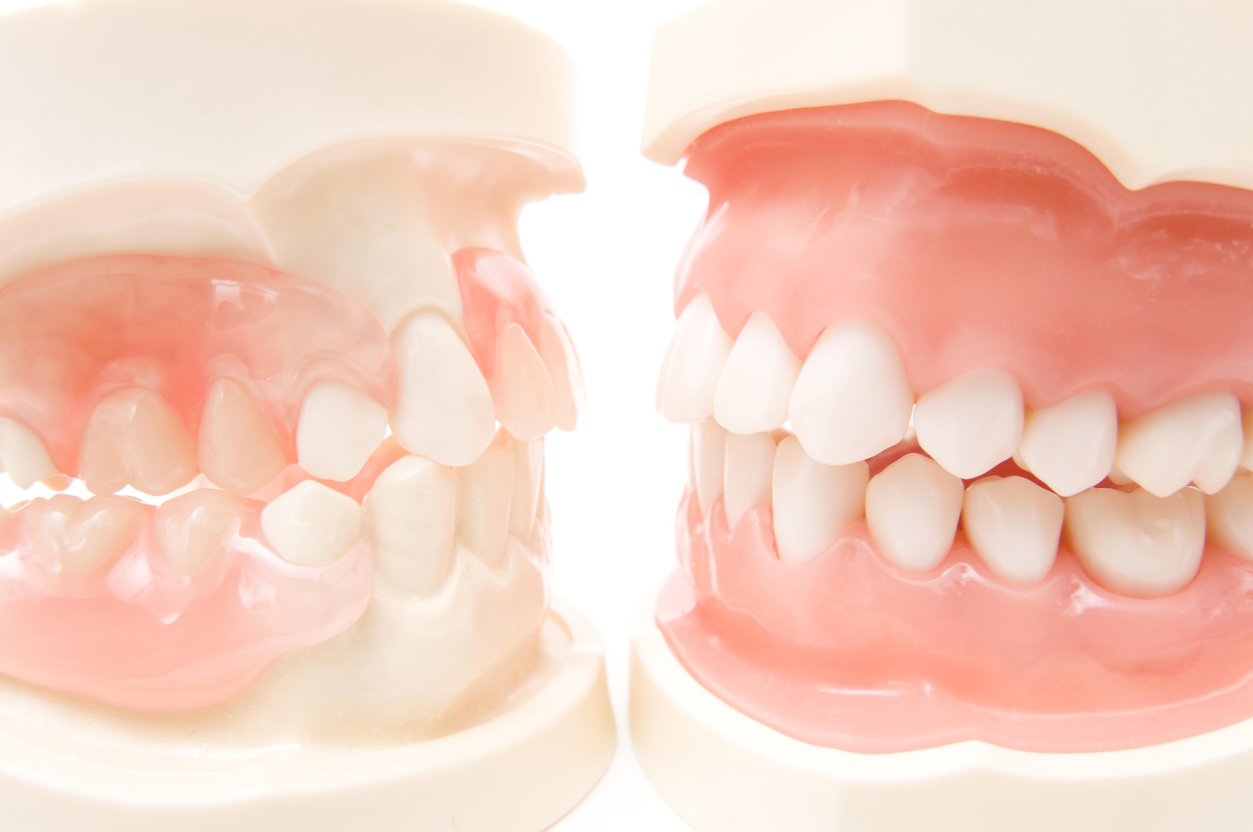 顎関節症(かみ合わせ)について